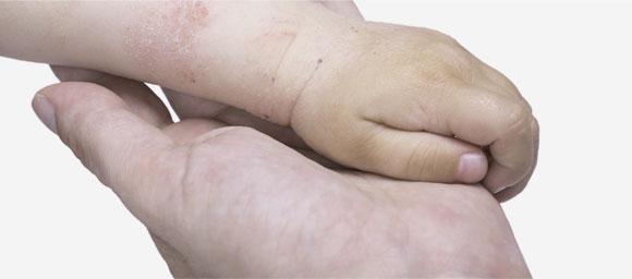 Ręce z AZS - zdjęcie